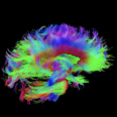 rainbow colored brain image