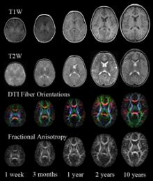 Sample MRI and DTI images from the study